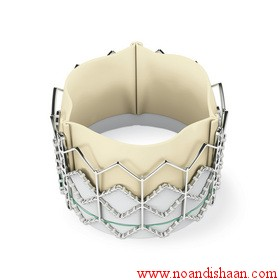 كارگذاشتن دريچهي مصنوعي قلب با استفاده از كاتتر