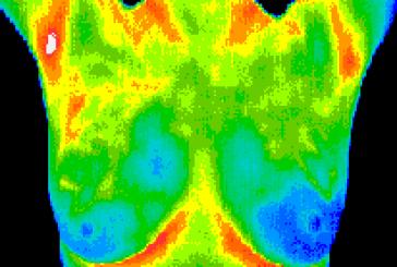 پردازش تصاویر ترموگرافی
