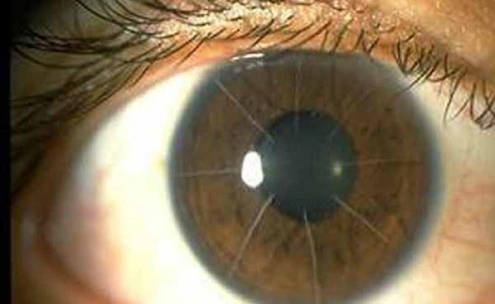 دانلود پایان نامه طراحی سیستم دریافت و پردازش تصویر برای پروتز بینایی