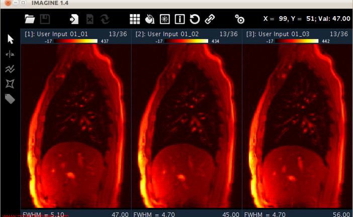 تولباکس ها و مجموعه کدهای خواندن و پردازش تصاویر پزشکی در متلب