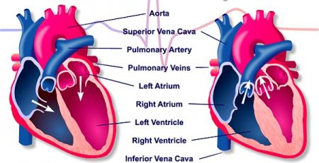 دریچه مصنوعی قلب