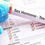 جزوه هورمون های جنسی و تفسیر نتایج