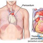 بررسی آناتومیک پریکارد قلب
